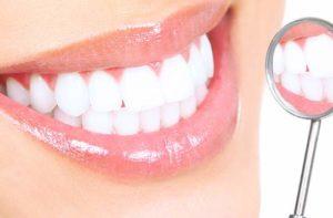 Blanqueamiento dental Valencia profesional