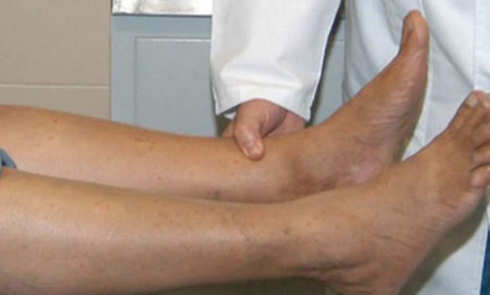 Tratamiento de pie diabético Valencia - Clínica profesional